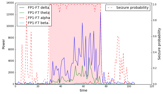 Detecting epileptic seizures from EEG signals by stiwarih